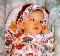 enfant qui ne vieillit pas, Brooke Greenberg, santé, insolite, cas unique, âge mental, os, dents de lait, cerveau, opération à la naissance, corriger les anomalies,