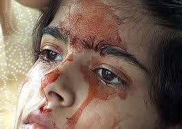 Twinkle Dwivedi, saigne sans blessures, étrange, paranormal, petite indienne, maladie particulière, couler du nez, couler des yeux, sang séché, maudite, insanités, médecins, prêtres,