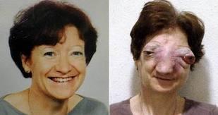 tumeur de la face, insolite, rare, Chantal Sébire, médiatisation, souffrances, décès, sinus, cloison nasale, l'euthanasie, esthésioneuroblastome,