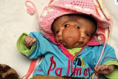 bébé à 2 visages, Inde, deux nez, deux lèvres, quatre yeux, réincarnation, déesse Durga,vénérée, déesse hindoue, lait, superstitions, démon buffle, insolite, record,