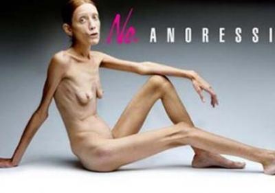 Isabelle Caro, anorexie, morte, combat, maladie, actrice, Oliviero Toscani, poser nue, sensibilisation,