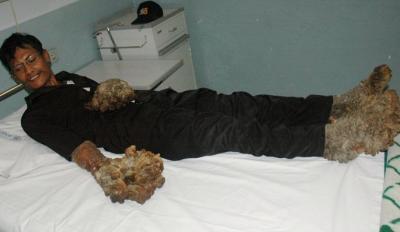 Dede, l'homme arbre, insolite, souffre, cas médical, nombreuses opérations, coupure à la jambe, bête de foire,