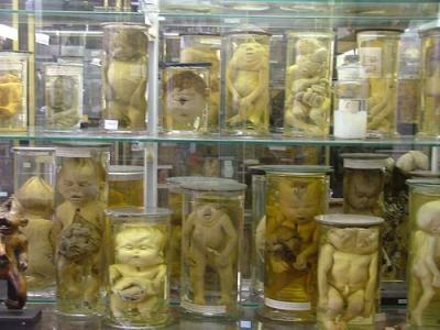 musée Dupuytren, insolite, Paris, faculté de médecine, anatomie pathologique, chirurgien, conservateur, collections, médecine opératoire, pièces osseuses,
