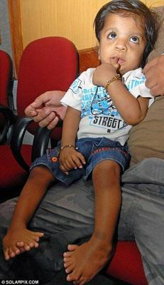 Akshat Saxena, née, avec 14 doigts, 20 orteils, insolite, particularité, surprenante, Guinness des Records, inscription, internet, record,