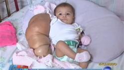 bébé, bras géant, insolite, Nicole, infection, maladie, lymphangiome, empêche, provoque, tumeur bénigne, écoulement de l'oxygène, médicaments, docteur, demande de l'aide, échographie prénatale,