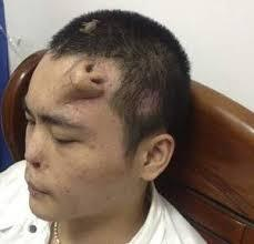 nouveau nez, pousse sur le front, remplacer l'original, insolite, incroyable, Chinois, Victime, grave accident, perdu sens olfactif, appendice, greffé, prélevé du cartilage,