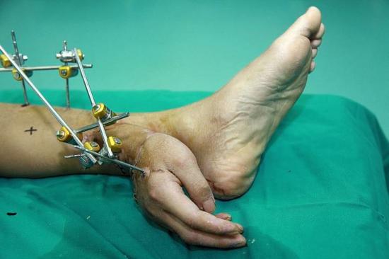 main greffée sur un pied, Chine, insolite, opération, chirurgien, irriguée en sang, hôpital de Changsha, temporaire, accident du travail, allodocteurs,