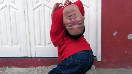 Brésil, homme né la tête à l'envers, Claudio Vieira de Oliveira, insolite, cou replié, jambes déformées, handicap physique,