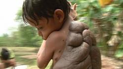 enfant tortue, carapace, dans le dos, insolite, souffert, grain de beauté, Didier Montalvo, retirer, greffes cutanés, chirurgien britannique,