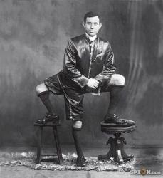 homme aux 3 jambes, Francesco Lentini, insolite, Sicile, attachée, colonne vertébrale, malformation, jumeau parasite, ventre de sa mère, abandonné, rejeté, traité de monstre,