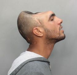 Carlos Rodriguez, manque un bout de tête, insolite, crâne, suite à un accident, policière déguisée, médiatisé,