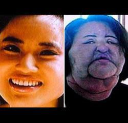 défigurée, injecter de l'huile, dans le visage, insolite, nombreux avantages, graves dégâts, chirurgie esthétique, opérer soi-même, malheureuse expérience, chirurgien, Hang Mioku, thérapie, huile de cuisine, seringue, silicone,