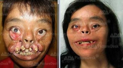 Kang sangmu a vecu 36 ans sans visage