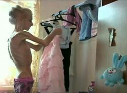 Ksyusha Bubenko, anorexique, choque, Russie, insolite, descente aux enfers, laissez-les parler, femme idéal, terrible engrenage,