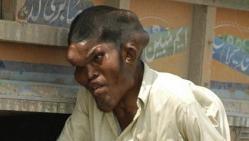 Sain Mumtaz, surnommé, Tête Géante, insolite, histoires choc, maladie rare, grossit le visage, sauvé, traitement expérimental,