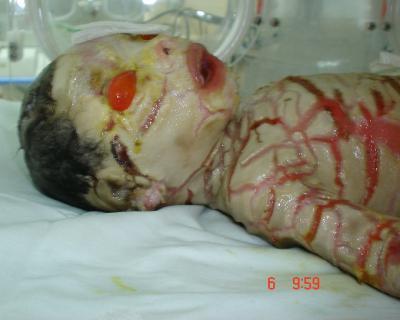 Le syndrome arlequin ou bebe collodion maladies rares