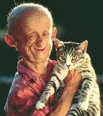 Les enfants vieux maladie rare progeria