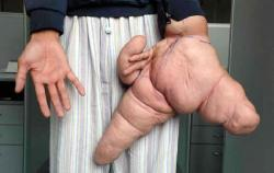 la plus grande, main, du monde, insolite, Lui Hua, Chine, souffre, condition connue, macrodactyly,