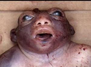 Malformation le bebe grenouille