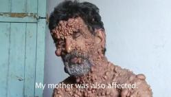 homme bulle, maladie rare, insolite, Omar, indien, corps recouvert, tumeurs bénignes, neurofibromatose, maladie génétique orpheline,