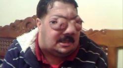 atteint, important cancer, au visage, insolite, Mouloud, algérien, ressortir les yeux, globes oculaires, nez, traitement, générosité, internautes, ne fonctionne pas, argent, soigner à l'étranger,
