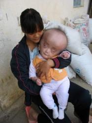 bébé chinois, souffre, mystérieuse, maladie rare, insolite, volume de son crâne, ne cesse de croître, Hong Yu, fièvre, médecins,