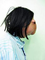 tumeur, incroyable, insolite, déformation, visage, Wu Xiaoyan, avatar girl, appel à l'aide, financer, traitement, James Cameron, soigner, chimiothérapie, radiothérapie,