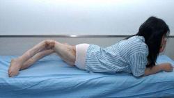 Xiao Fang, malformation des jambes, insolite, accident de la route, blessures aux jambes, genoux vers l'arrière, graves séquelles, opération chirurgicale, redresser, os déformés,
